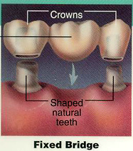 dental bridge graph